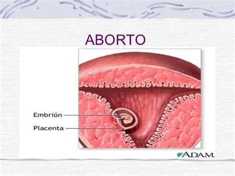 Cytotec 1 Mes De Embarazo Aborto Actual