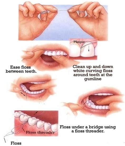 are you cleaning your teeth properly dental