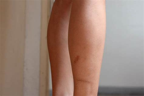 hide hair scar marks how to remove scars on legs