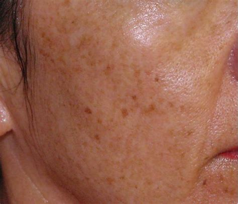 Chocolate Spots skin spots pictures photos