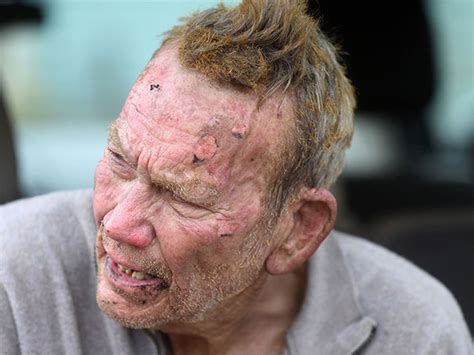 55 year old face 82 year old man burned face while trying to save his dogs