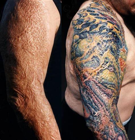 se faire tatouer pour cacher une cicatrice petit petit