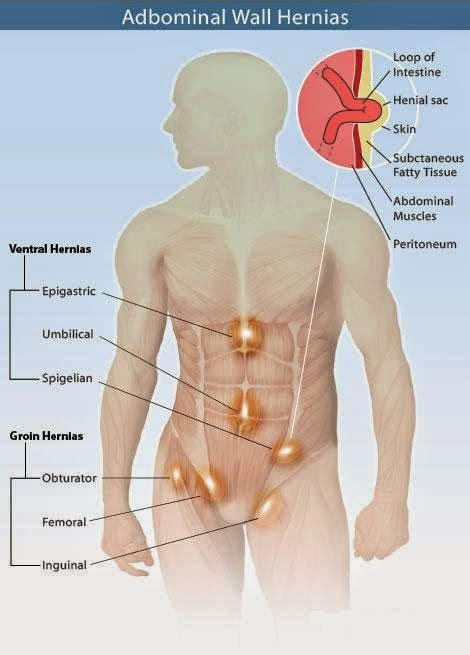 natural fitness tips natural tips  treat hernia   ventral  difficult hernia