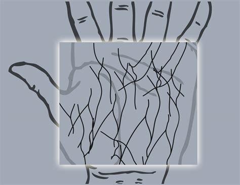 pattern matching vs pattern recognition iris recognition biometrics vs palm vein biometrics