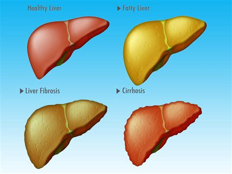 Stewart Has Liver Disease 2 by New System Detects Cirrhosis In Fatty Liver Disease