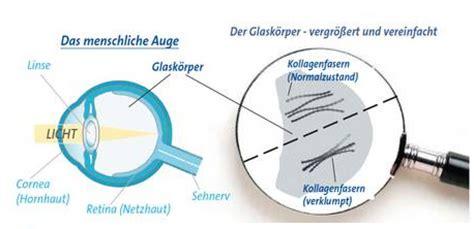 mouches volantes behandlung homöopathie fliegende m 252 cken mouches volantes floater mehner info