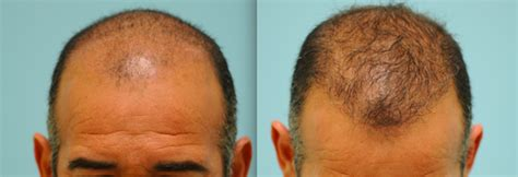 hair restoration hair transplant hair replacement follicular unit follicular unit extraction dallas fue hair transplant