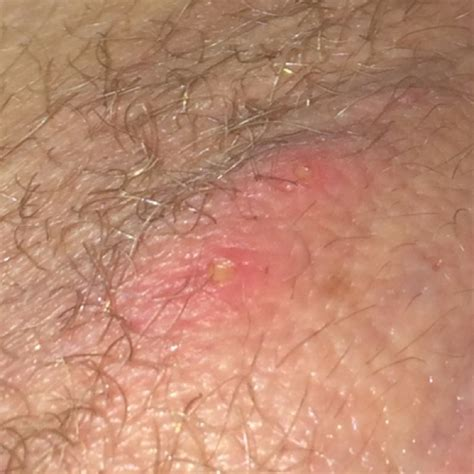 it looks like a simple ingrown hair does this look like a simple ingrown hair or something