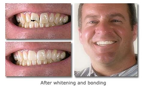 dental bonding repairs  chipped tooth   natural