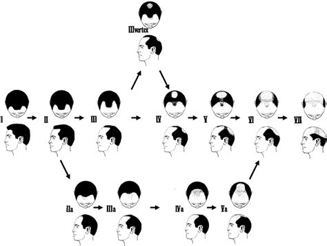 male pattern baldness types how to use genetics to figure out if you ll go bald vox