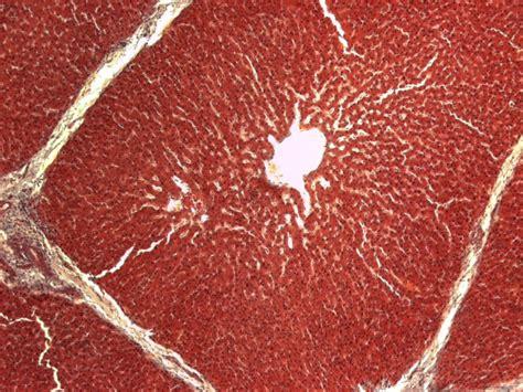 alimentazione per il fegato grasso steatosi epatica fegato grasso