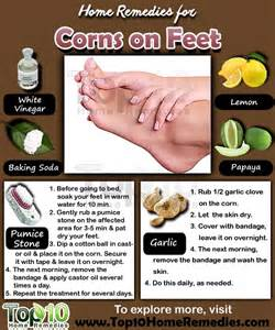 home remedies for corns on page 2 of 3 top 10