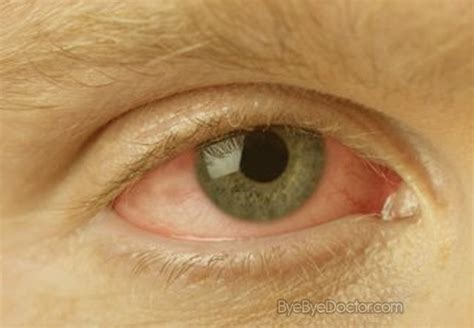 symptoms of pink eye pink eye pictures symptoms treatment contagious remedies causes diagnosis