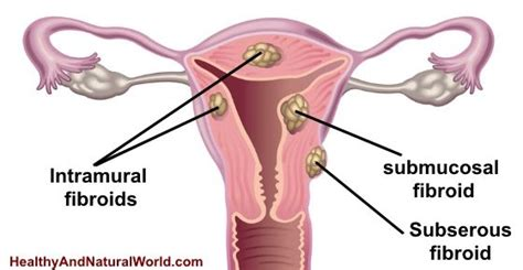 caring for yourself after surgery fibroids a 52 best images about uterine fibroids on pinterest