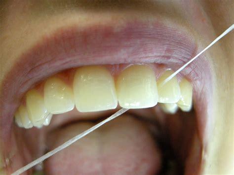 Zahn Polieren Kosten by Bilder Professionelle Zahnreinigung