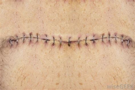 healing of c section incisions how can i minimize c section scarring with pictures
