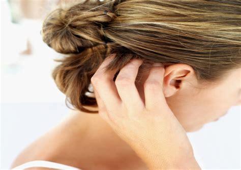 tengo costras en el cuero cabelludo 7 cosas que tu pelo dice sobre tu salud
