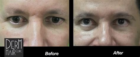 eyebrow transplant spiky hairs 300 ugrafts of leg hair for eyebrow hair transplant on