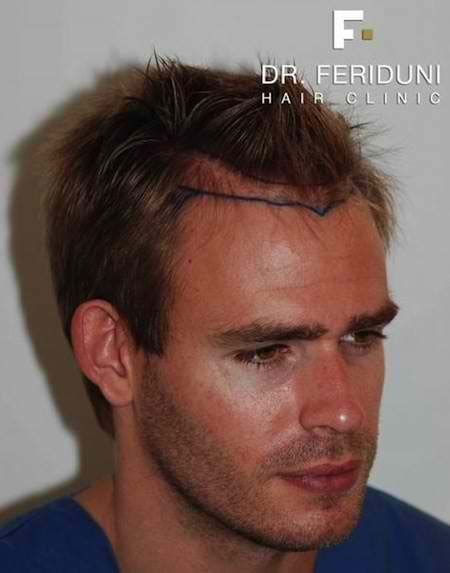 receding temples hair transplant receding hairline cost and price hair