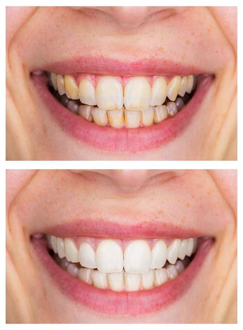 whitening dental care  beautiful smile  teeth