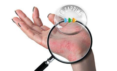 picores en el cuero cabelludo causas tratamientos capilares ollas y masaje capilar contra