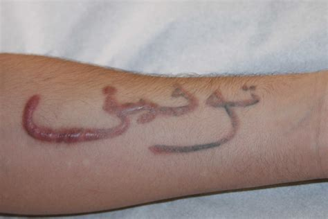 scar from tattoo removal beware of what you do keloid removal expert new york