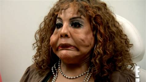 the face of 48 year old woman transformation cement face woman from botched debuts