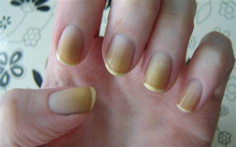 Photos Of Nail
