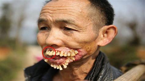 imagenes raras de humanos las 7 enfermedades mas raras y extra 241 as del mundo youtube