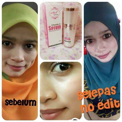 Serum Vitamin C Nn serum vitamin c nn murah leen shop