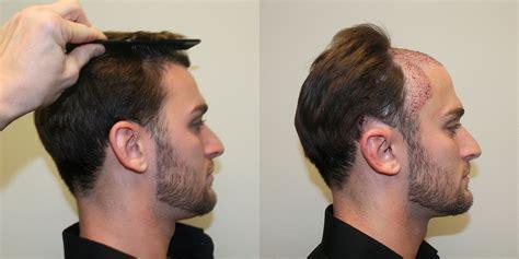 best hair implant hair transplant industry exposed best dr brett bolton