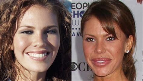 nikki cox before and after plastic surgery nikki cox plastic surgery celebrity plastic surgery
