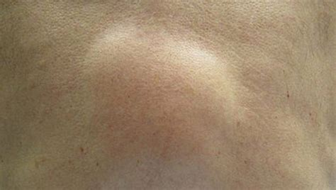 lump s skin that lipoma skin lumps causes diagnosis and treatments