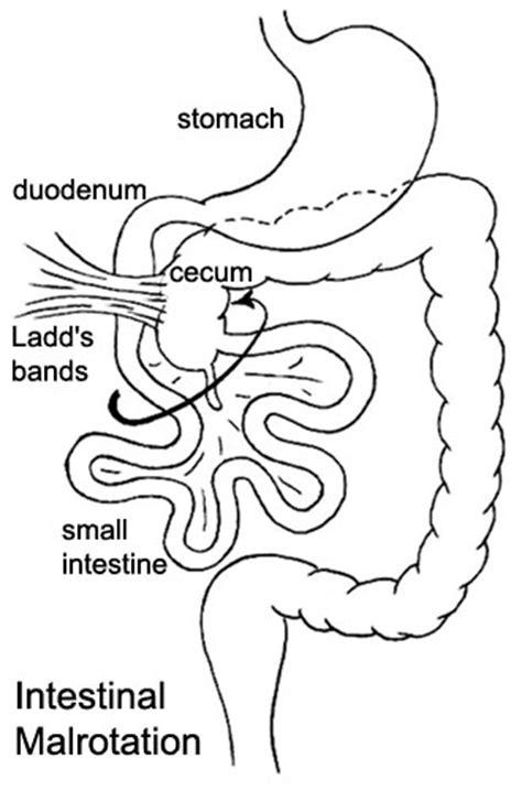 intestinal blockage timeline file intestinal malrotation jpg embryology