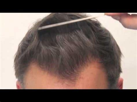 fut hong kong hair transplant dr rahal results 5672 fut grafts rahal hair
