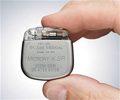 Baterai Alat Pacu Jantung pengembangan alat pacu jantung tanpa baterai sedang dilakukan jagat review