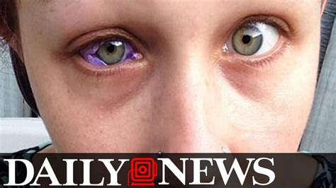 eyeball tattoo gone wrong model gets eye tattooed and it goes horribly wrong