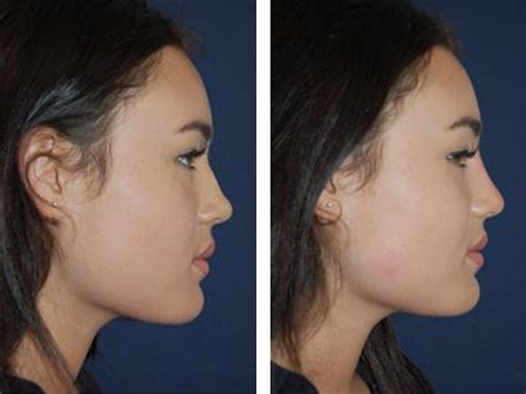 Non Surgical Nose Job (Rhinoplasty) Costs in London   111 Harley St.