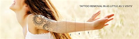 victoria tattoo removal removal treatment in montreal park