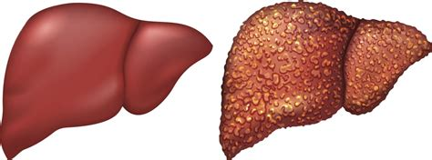Detoxing Liver Heptiitis C by The Importance Of Taking Cirrhosis Medications Hepatitis
