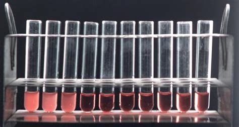 widal wright test agglutinins and the agglutination reaction