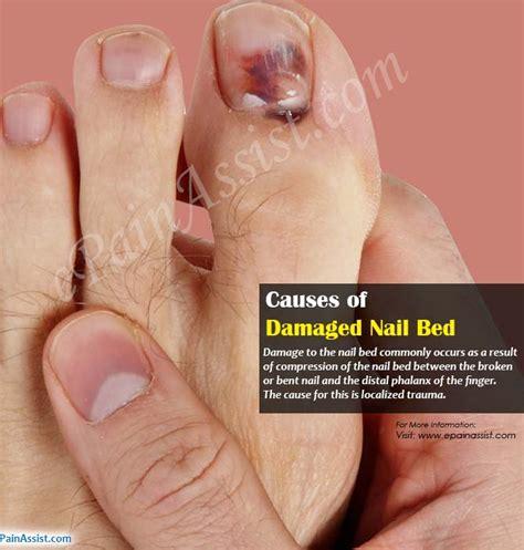 damaged nail bed toenail split nail bed best nails 2018
