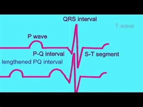 ecg pattern meaning 9 best images about heart actions hap 7 on pinterest
