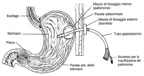alimentazione peg gastrostomia peg science
