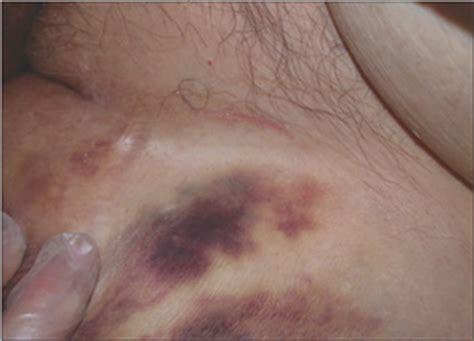 pictures of bushy thick pubic area mons pubis hair tasha s blog