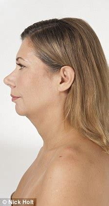 women with turkey neck pictures one stitch facelift quick fix plastic surgery for