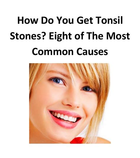 8 Most Common Killers And How To Stop Them by Tonsil Cure How To Stop Tonsil Stones