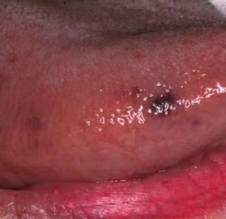 black spot on s tongue black spots on tongue tiny small tip sides std causes how to get