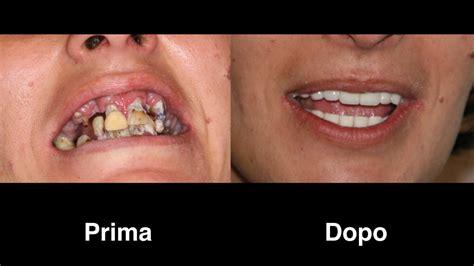 protesi    su  impianti dentali sos turismo dentale