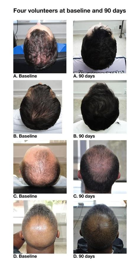 hair growth supplements for revita locks revita anti hair loss stimulating growth shoo 9 end 11